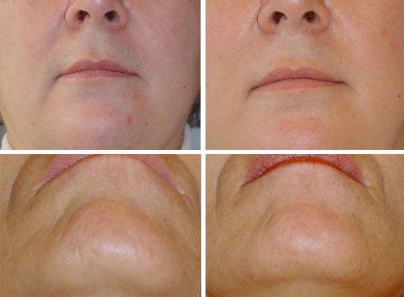 facial rejuvenation center